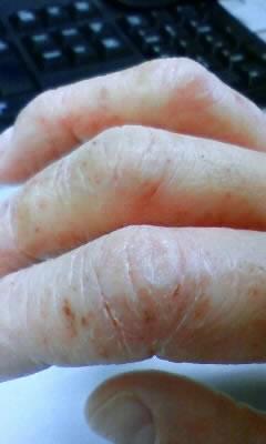 手の関節部分にできた汗疱が破れ乾燥しひび割れている状態
