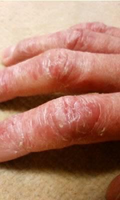 ステロイド外用薬の副作用。赤みと腫れを伴い強く炎症を起こしている。