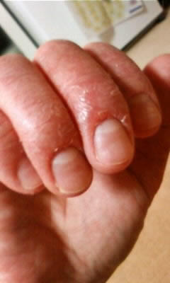 爪周囲にできた汗疱状湿疹で甘皮が無くなった状態