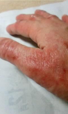 手のアトピー性皮膚炎