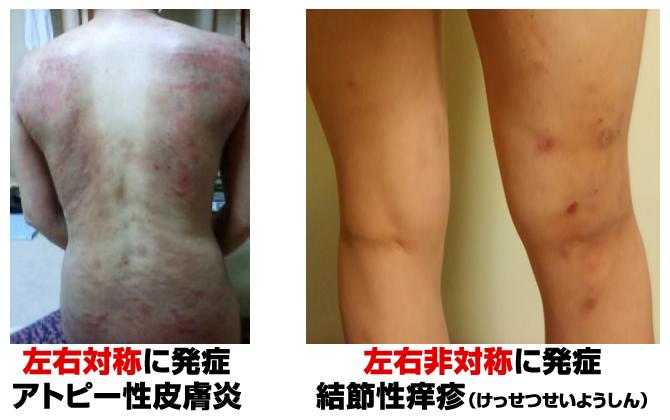 左右対称に発症するアトピー性皮膚炎と、左右非対称に発症する結節性痒疹。