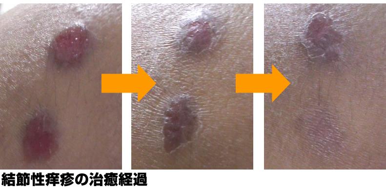 結節性痒疹の治癒経過
