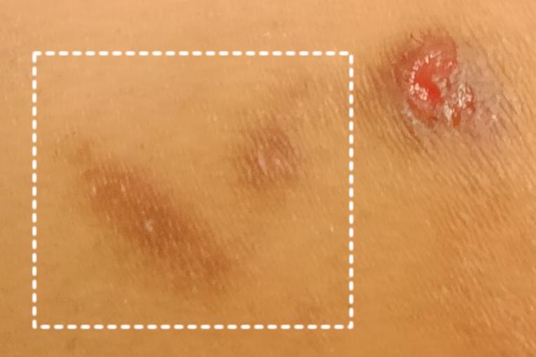 結節性痒疹の痕 色素沈着を起こしシミとなって残る