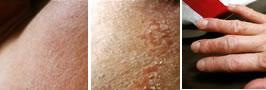 強い乾燥の時期(象の皮膚)