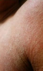 アトピーの強い乾燥 肩
