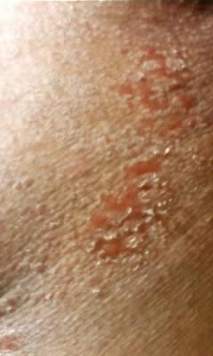 ん コ 発疹 痛い 赤い チ