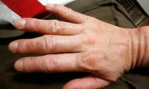 アトピーの強い乾燥 指