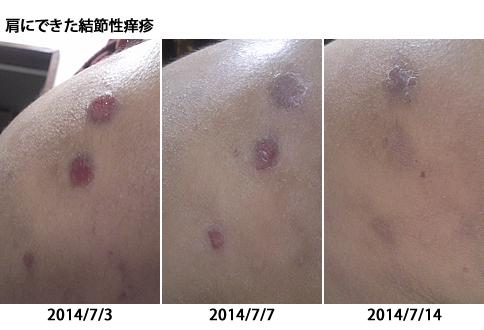 結節性痒疹 RG92マルチアクティブ